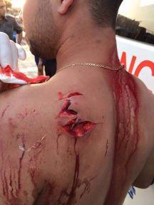 A késelés-hullám egyik izraeli áldozata